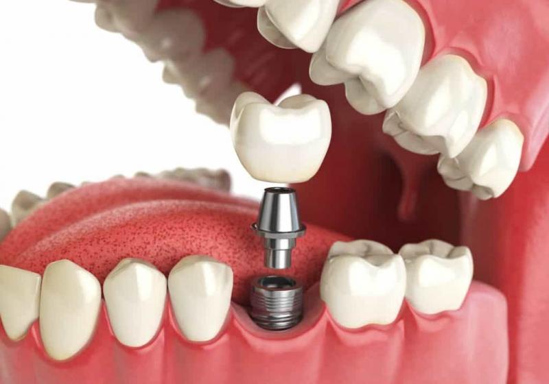 Импланты зубов Вс на 4 имплантах.