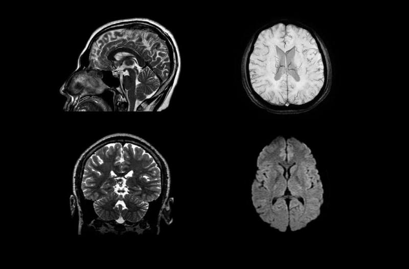 МРТ-исследования всех видов